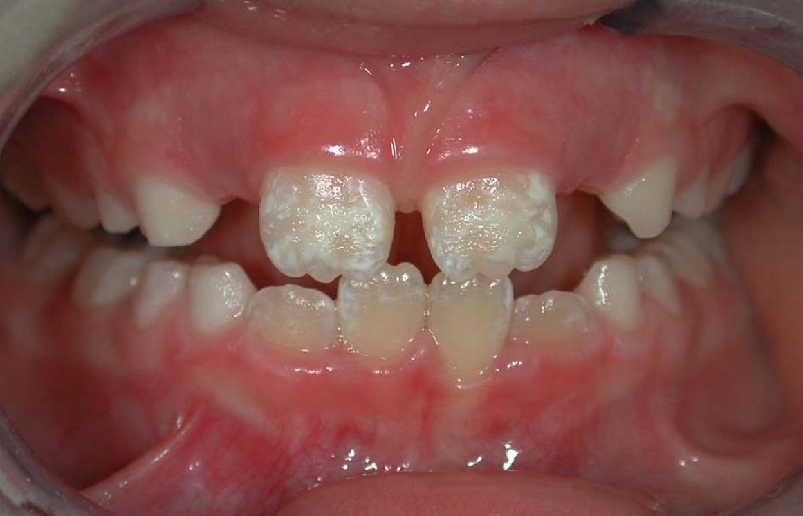 Hypoplasie de l'émail dentaire (HE)