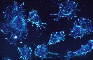 Autres lésions cellulaires: métaplasie, dysplasie, dystrophie et dégénérescence cellulaire