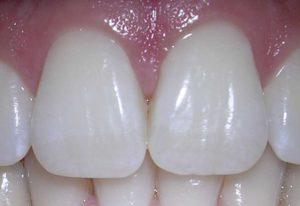 Le tissu dentaire – Un tissu conjonctif qui constitue nos dents