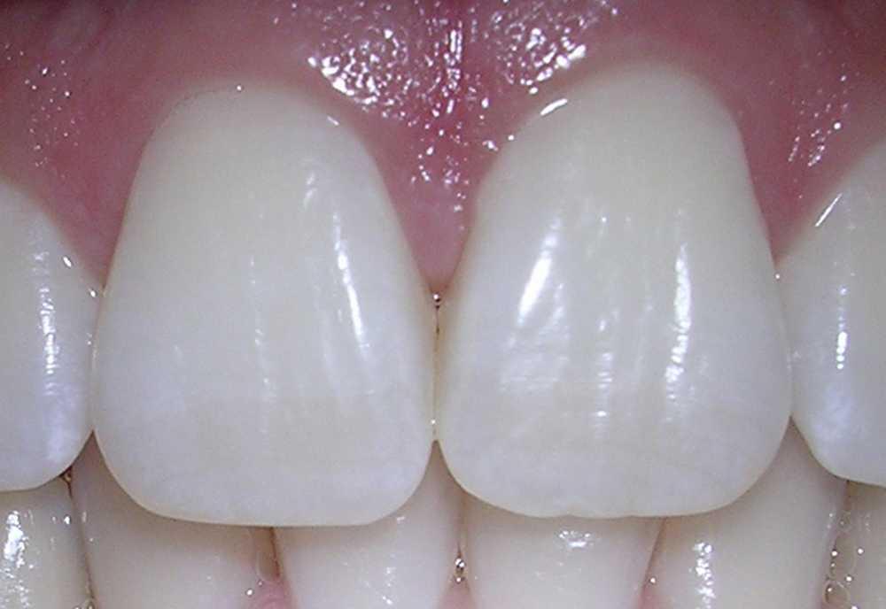 Le tissu dentaire fait partie des tissus conjonctifs.