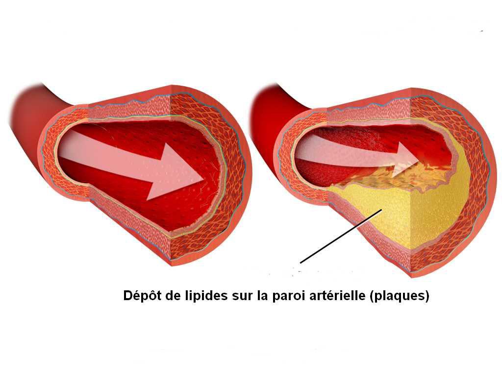 Surcharge colloïdale - Dépôt de lipides