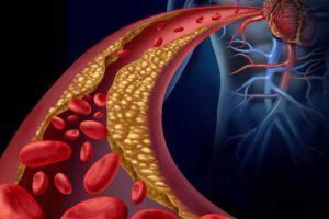 Hypercholestérolémie : trop de mauvais cholestérol dans le sang