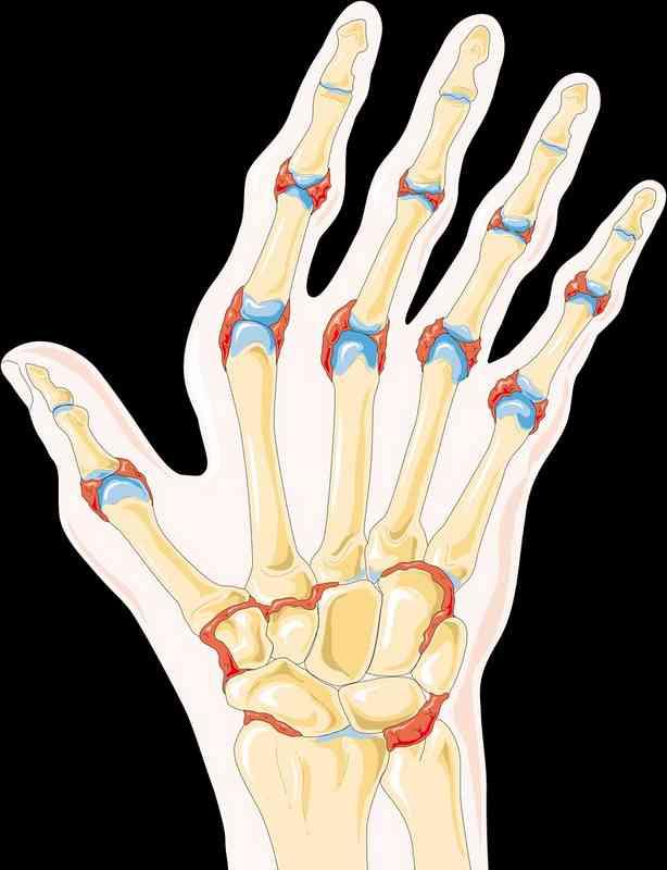 L'arthrite peut être la conséquence d'une surcharge en acide urique.