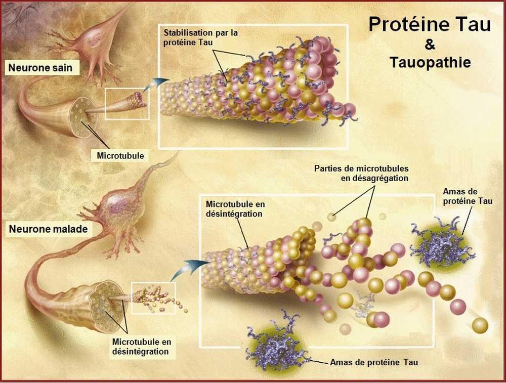 Protéine Tau