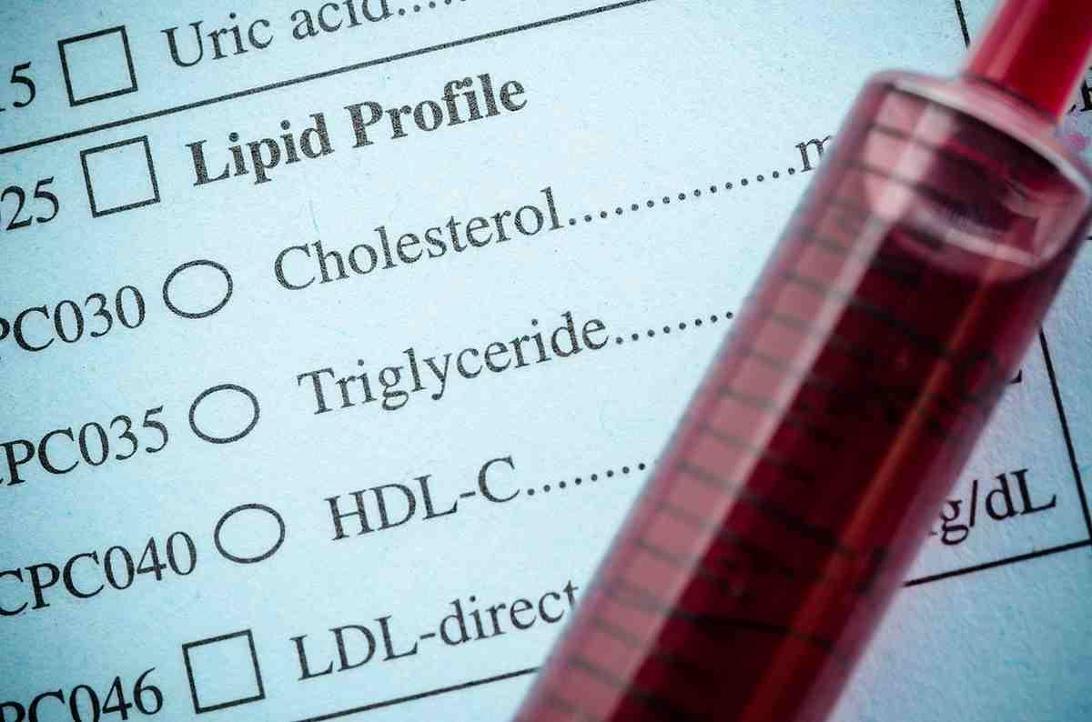 Hyperlipidémie