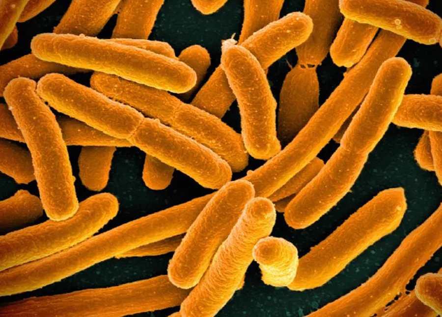 Bactérie E. Coli